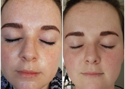 IPL before and after