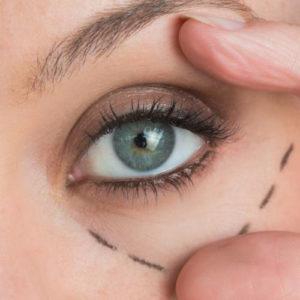 Eyes: Lines & Wrinkles
